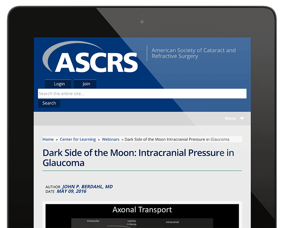 Presentation at ASCRS: Dark Side of the Moon: Intracranial Pressure in Glaucoma